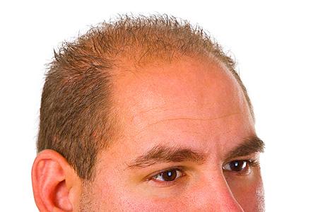 Haarverpflanzung kosten
